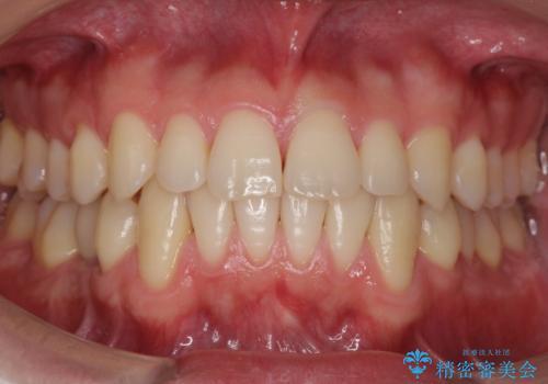 すきっ歯・出っ歯が気になる インビザライン矯正 乳歯をインプラントにの症例 治療後