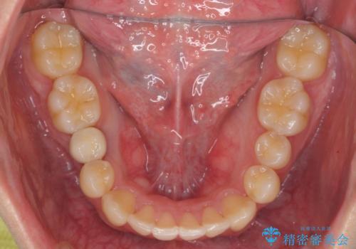 すきっ歯・出っ歯が気になる インビザライン矯正 乳歯をインプラントにの治療後