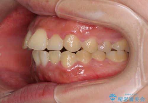 口元の突出感を改善 ワイヤー装置による抜歯矯正の治療前