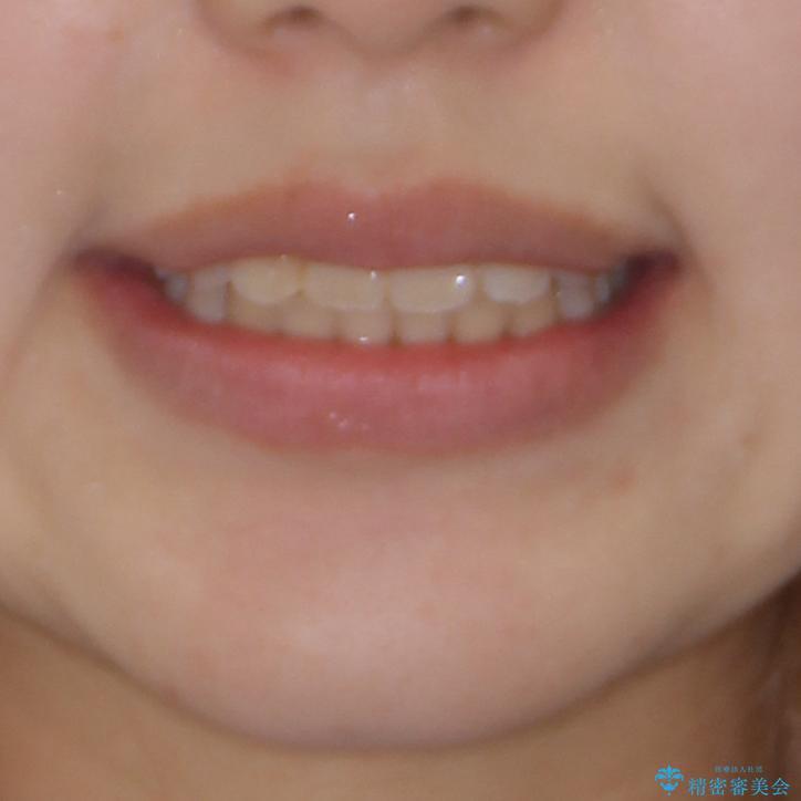 短期間で終了 デコボコをワイヤー矯正で解消の治療後(顔貌)