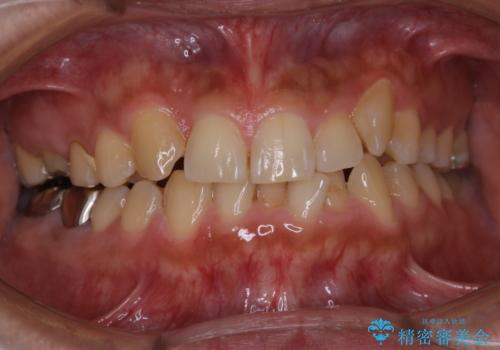 矯正治療を考えている方の歯のクリーニングの治療前