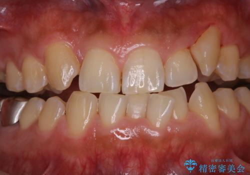 矯正治療を考えている方の歯のクリーニングの治療後