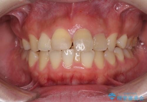 抜歯矯正の後戻り インビザラインによるオープンバイトの再矯正の治療前