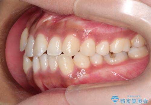 インビザラインと補助装置の併用による八重歯の抜歯矯正の治療前