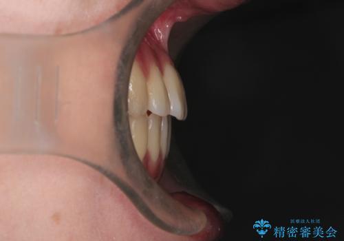 インビザラインによる非抜歯矯正 ガタガタな歯並びを整った歯並びへの治療後