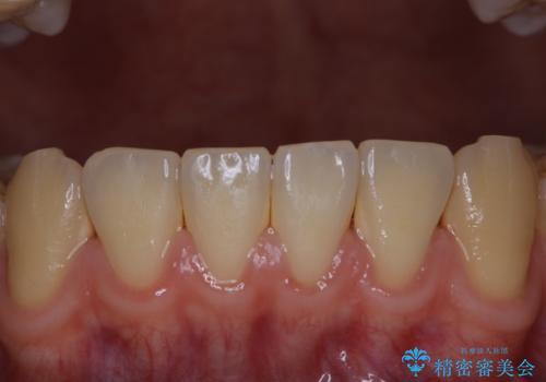 歯周病は細菌による感染症 その予防をPMTCでの治療前