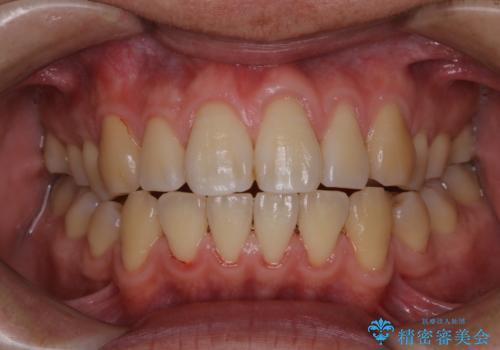 歯周病は細菌による感染症 その予防をPMTCでの治療後