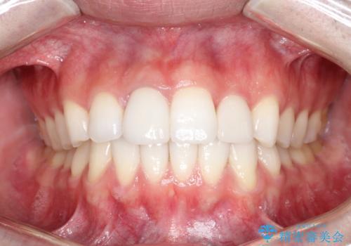インビザラインとセラミック治療で整った歯並びへの症例 治療後