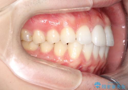 インビザラインとセラミック治療で整った歯並びへの治療後