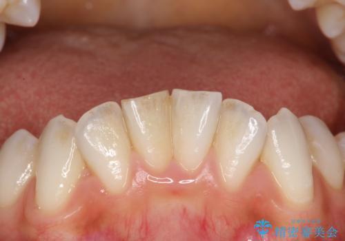 前歯の茶色をPMTCで綺麗に白くの治療前