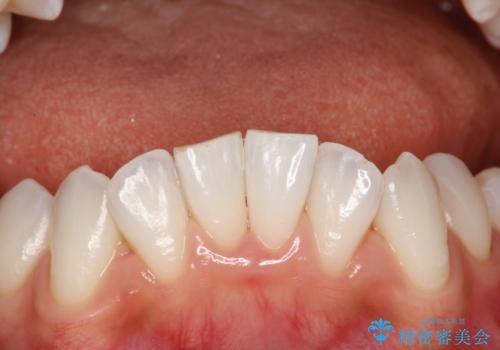 前歯の茶色をPMTCで綺麗に白くの治療後