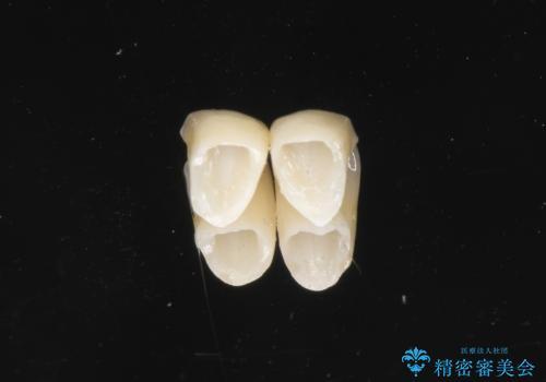 下の前歯の色が気になる セラミックで綺麗に 40代男性の治療中