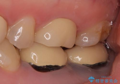 オールセラミッククラウン 治らない歯茎の腫れの治療前