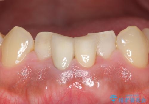 下の前歯の色が気になる セラミックで綺麗に 40代男性の治療後