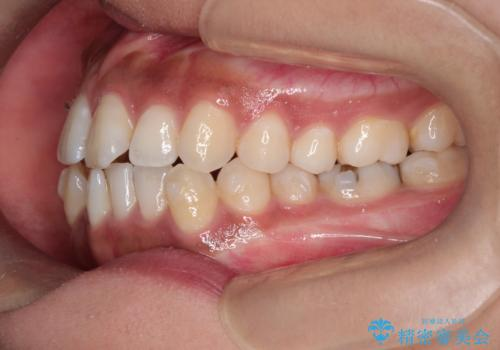 インビザラインと補助装置の併用による八重歯の抜歯矯正の治療中