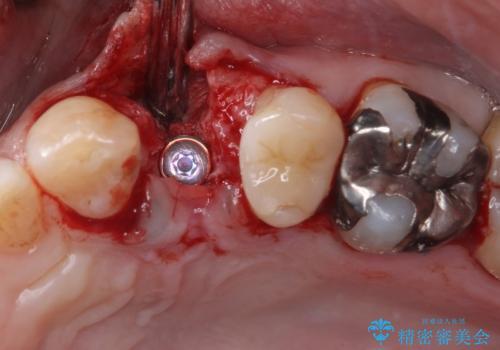 割れてしまった小臼歯 インプラントによる補綴治療の治療後