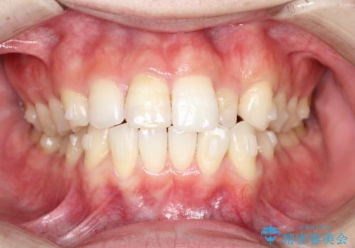 インビザラインとセラミック治療で整った歯並びへの治療中