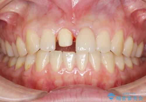 歯が折れた セラミックで綺麗に 30代女性の治療中