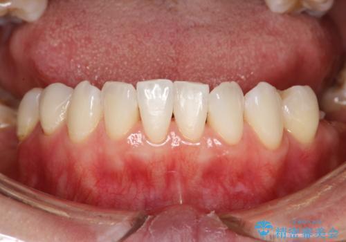 マスクにより感じる口臭をPMTCで対策の治療後