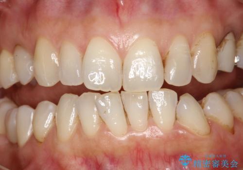 PMTCで歯と歯の間の細かいステインの除去の治療前