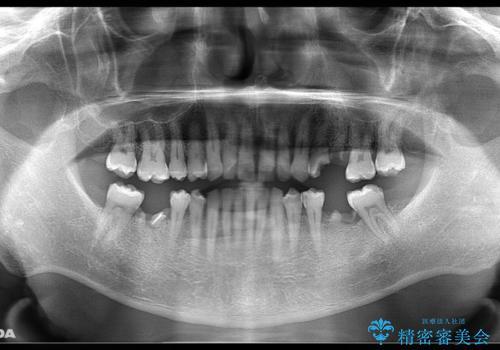 短期間で集中的に全顎治療の治療前