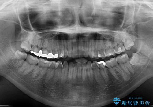 前歯のデコボコを改善 目立たないワイヤー矯正の治療前