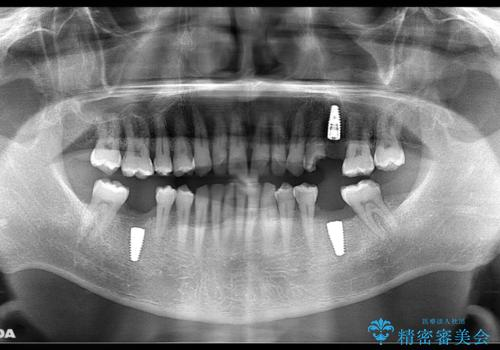 短期間で集中的に全顎治療の治療中