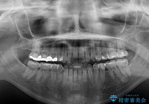 前歯のデコボコを改善 目立たないワイヤー矯正の治療後