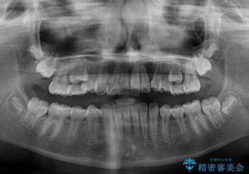 埋もれた犬歯を引っ張り出す 小学生のⅠ期治療の治療後