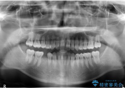すきっ歯・出っ歯が気になる インビザライン矯正 乳歯をインプラントにの治療中