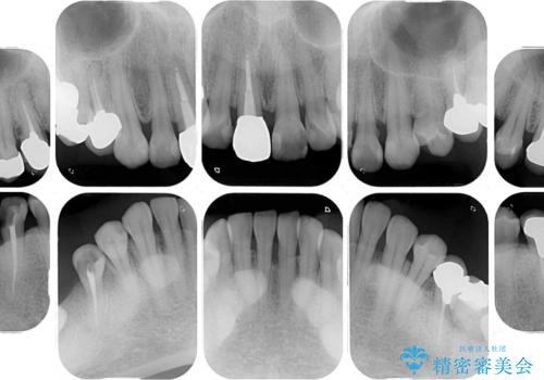 気になる部分を全て治療 総合歯科治療で口腔内環境改善の治療前