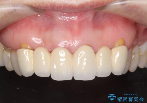 不自然な前歯ブリッジ ジルコニアブリッジによるやり替えの治療前