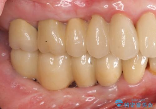 虫歯治療の症例 治療後