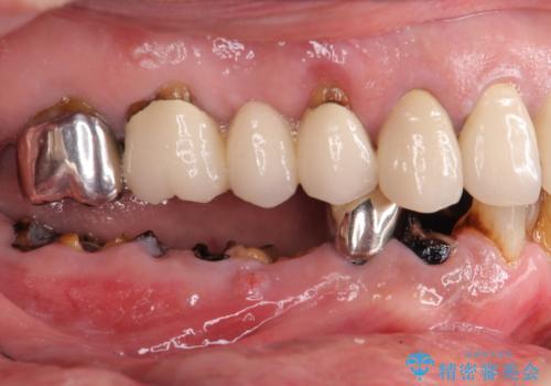 虫歯治療の症例 治療前
