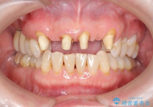 不自然な前歯ブリッジ ジルコニアブリッジによるやり替えの治療中