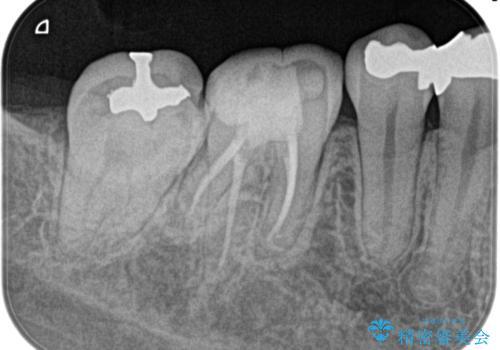 【根管治療】昨日から眠れないぐらい歯が痛いの治療後