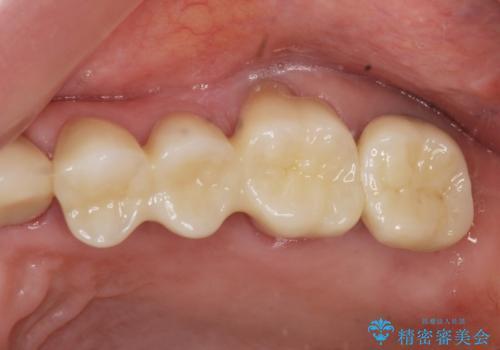歯ぎしりに抵抗する歯周補綴 インプラント補綴の治療後