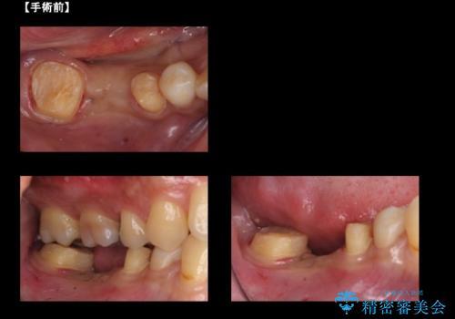 虫歯がひどく抜歯 奥歯をブリッジにの治療中