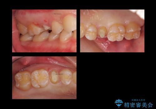歯の高さがなく、しょっちゅう外れる 他院で治療途中だが病院を変えたいの治療中