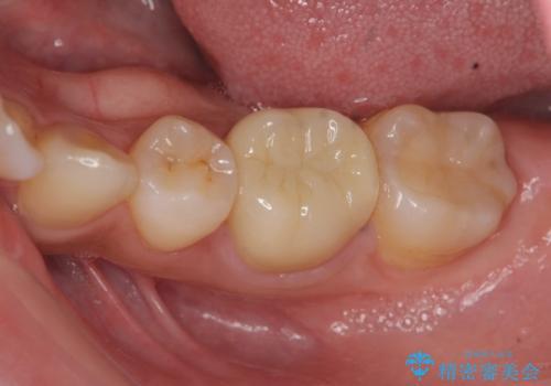 笑った時に目立つ銀歯を白くしたいの症例 治療後
