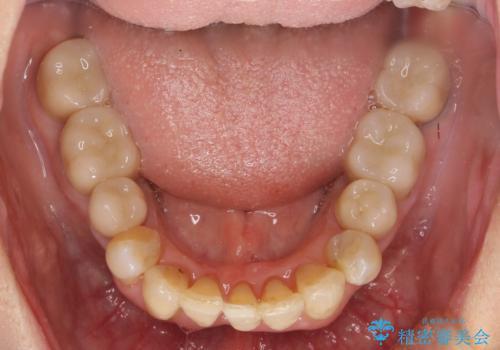 矯正を含む全顎治療の治療後