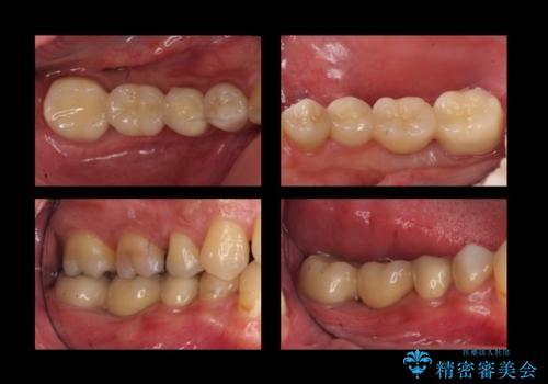 虫歯がひどく抜歯 奥歯をブリッジにの治療後