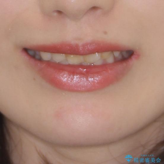 気になる前歯を美しく マウスピース矯正とセラミッククラウンの治療前(顔貌)