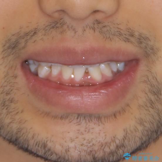 前歯の叢生を解消 ワイヤー装置での抜歯矯正の治療前(顔貌)