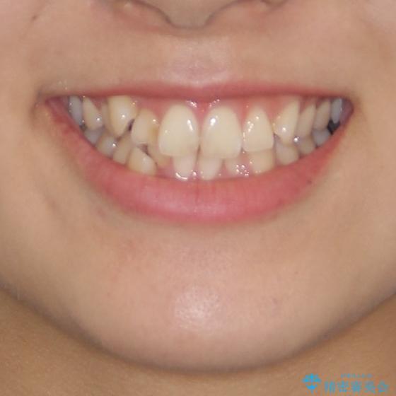上下の八重歯を治したい 補助装置を用いたインビザライン矯正の治療前(顔貌)