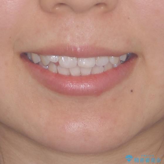 前歯のデコボコが気になる インビザラインによる矯正治療の治療前(顔貌)