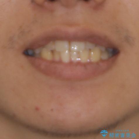 前歯のクロスバイトをインビザラインで矯正治療の治療前(顔貌)
