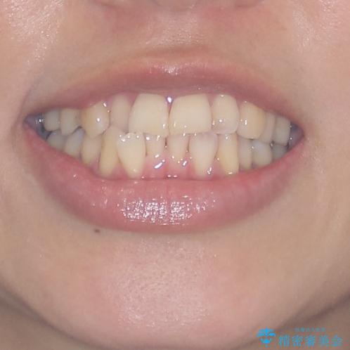 切端咬合をインビザライン矯正で解消の治療前(顔貌)