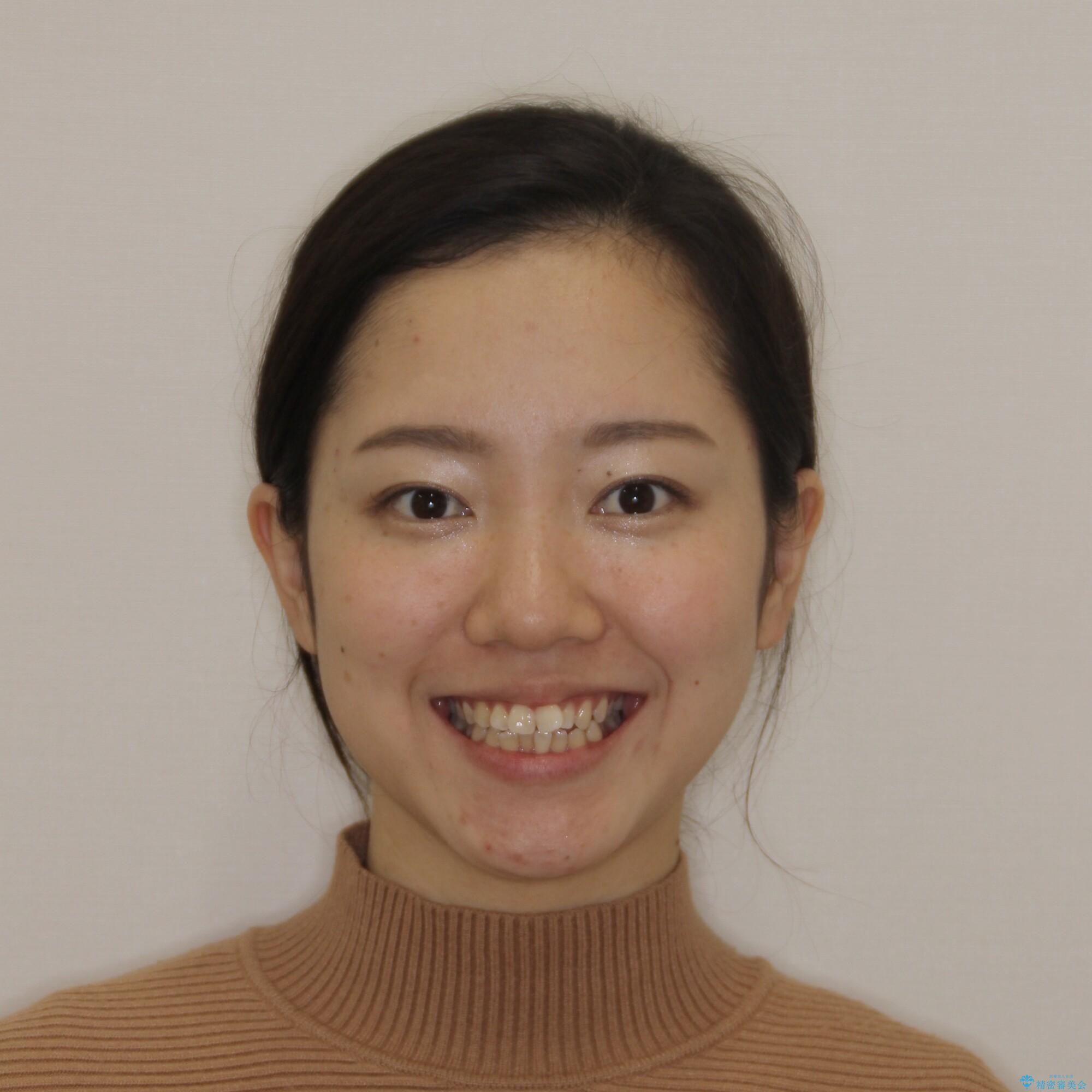 【モニター】オープンバイトをインビザラインで矯正治療の治療前(顔貌)