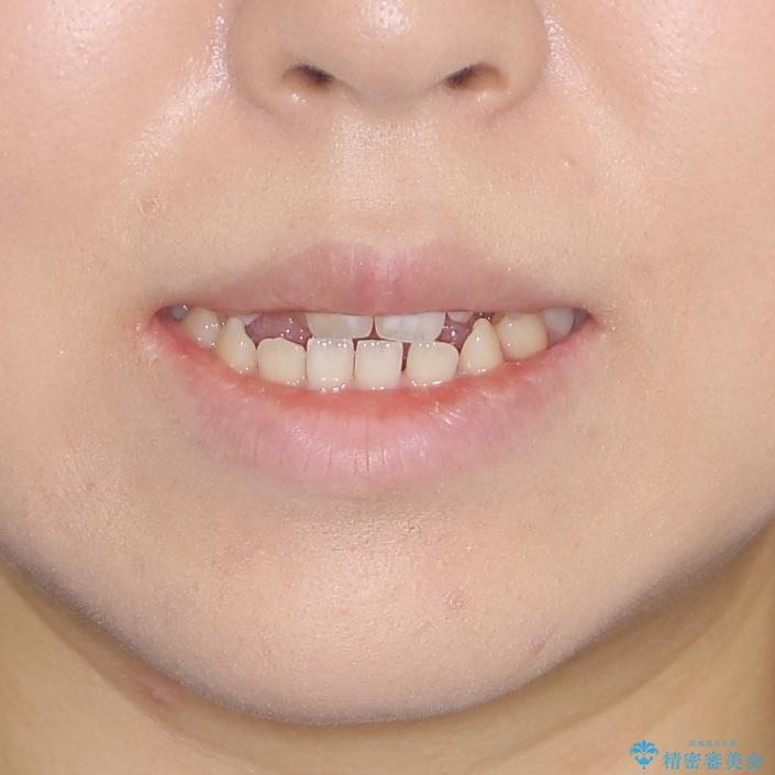 外科矯正は受けたくない 上顎骨拡大による妥協的な受け口治療の治療前(顔貌)